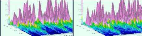 過度活躍症EEG